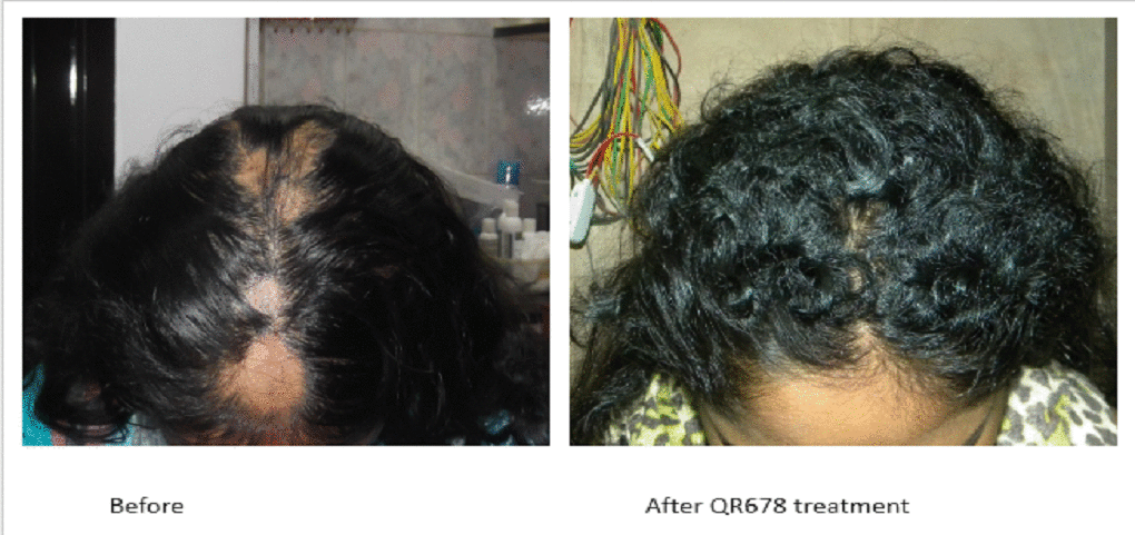 Best Hair Treatment In Mumbai India Best Hair Clinic In